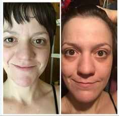 Check out her skin after using serum! Stem Cell Research, Cellular Level, Stem Cells, Anti Aging Skin Care, Serum, Cosmetics, Face, Skincare, Amazing