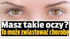Masz takie oczy? To może zwiastować chorobę.