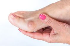 Feet & Bunions - Facts & Figures