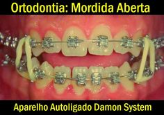 Ortodontia: Mordida Aberta / Aparelho Autoligado Damon System | Odonto-TV