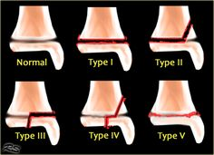 """Salter  Harris classification of epiphyseal fractures  S - Typ 1 """"Slide"""" , A- Typ 2 """"Above"""" ,L - Typ 3 """"Lower"""" , T - Typ 4 """"Through """",  E- Typ 5 """"Everything """"  ,R - Typ 6 """" Periostal Ring """""""