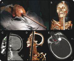 Sobrevivió a la neurocirugía. Imagen del Dr. Luis Javier Solorzano Barrera
