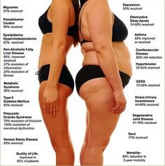 Weight Loss Surgery Comparison -PositiveMed | Positive Vibrations in Health