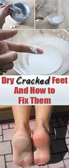 How to treat dry and cracked heels naturally. When the skin on the heels is dehydrated will crack. Cracked heels cause severe pain and may start to bleed. These cracked heels may be due to lack of moisture. This condition can also be the fifth due to long-standing and eczema, psoriasis, thyroid dysfunction and diabetes. #EczemaCauses #Treatingthyroidnaturally