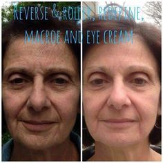 Now these are some AWESOME results!!! This is why we are one of the FASTEST GROWING premium skincare lines. Our products WORK---Guaranteed!!! Fellow consultant, Alaina Kelly, shared this picture of her mom's 9 month results. Amazing!!!