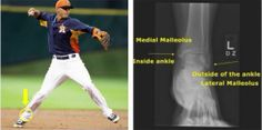 Ankle Injuries, Baseball Injuries, Third Base, Sport Casual, Houston Astros, Saturday Night, Organization, Sports, Top