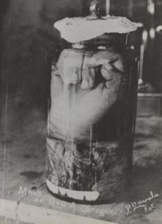 Mano de Álvaro Obregón, 1915