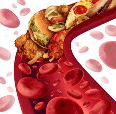 mean arterial pressure formula