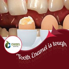 Did you know that tooth enamel once lost, cannot be restored? Protecting your tooth enamel will help you combat sensitivity. Know more Chisel Dental Clinic Reach us : www.dentalclinicbangalore.com Tooth Enamel, Sensitivity, Pediatrics, Dentistry, Clinic, Dental, Lost, Teeth, Enamel