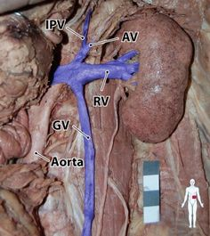 Cadaveric image of the right adrenal vein draining directly into the ...