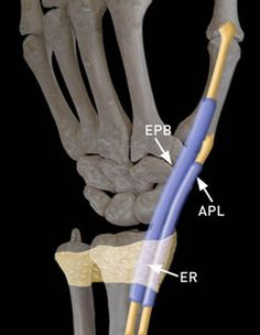 Clinical History: Dorsoradial wrist pain in a 50 year-old golfer. Chronic Pain, Fibromyalgia, Wrist Pain, 50 Years Old, Ms, Hands