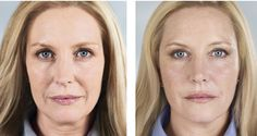 Sculptra treatments are available at Skin Secrets Med Spa in Greenwood Village Facial Fillers, Dermal Fillers, Denver Colorado, Facial Fat Loss, Hyaluronic Acid Fillers, Nasolabial Folds, Facial Rejuvenation, Skin Secrets, Cosmetic Procedures