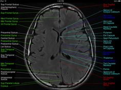 29 best mri images on pinterest human body medicine and radiology normal brain mri ccuart Image collections