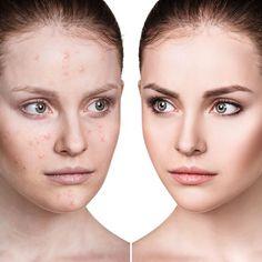 Κάτι φαίνεται να αλλάζει στον τρόπο αντίληψης της ομορφιάς: Ένα νέο κίνημα ομορφιάς, που ονομάζεται Skin Positivity, μας κάνει να αισθανόμαστε καλύτερα με τις ατέλειές μας.Είναι καιρός να απενοχοποιήσουμε τον όρο «ατέλειες» και να αναπροσδιορίσουμε τα κριτήρια