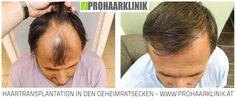 Haartransplantation, Haarverpflanzung Deutschland