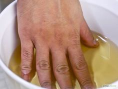 She Put Her Hands in Apple Cider Vinegar Twice a Week; You Will Not Believe The Effect is Achieved