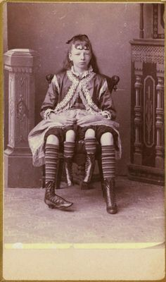 Josephene Myrtle Corbin, the Four-Legged Woman, was born in Lincoln County, Tennessee in 1868. Rather than having a parasitic twin, Myrtle's extra legs resulted from an even rarer form of conjoined twinning known as dipygus, which gave her two complete bodies from the waist down. She had two small pelves side-by-side, and each of her smaller inner legs was paired with one of her outer legs. She could move the smaller legs but was unable to use them for walking. At the age of 19, she married ...