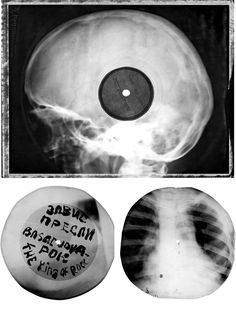 Bone Music: How Banned Western Music in the Soviet Union Was Printed on Repurposed X-Ray Records