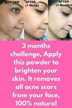 3 months challenge, Apply this powder to brighten your skin. It removes all acne scars from your face, 100% natural First we will prepare the scrub to start this treatment To prepare this mask you will need Honey Lemon Brown sugar Preparation Take a clean bowl and mix all these 3 ingredients in equal amount. Mix it Now first clean your face, take steam on your face for 3-4 minutes to open your skin pores. …