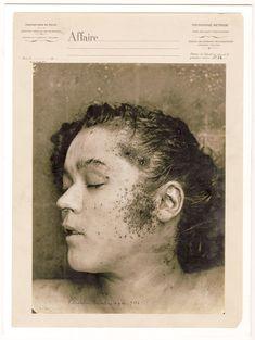 Cadáveres sin cabeza, cuerpos putrefactos y miembros arrancados a comienzos del siglo XX.
