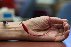 Acupuncture may reduce high blood pressure - MEDICAL NEWS TODAY #Acupuncture, #Blood, #Pressure, #Health