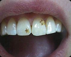 this would be prettier if there wasn't gunk stuck between the front teeth