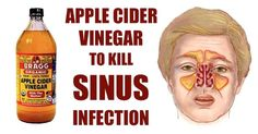 Many of you have probably experienced a sinus infection. For those of you who do not know what it is, it is an inflammation of the membrane and the tissue. Often, this inflammation causes fevers,