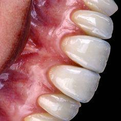 ✍✍✍ . . #renatoferreiraorthos #dentistry #dentist #odontologo #dental #dentaltechnician #dentallabor #periodontia #saude #jlle #dentista #beautiful #smile #joinville #santacatarina #Brasil #photos #fotografiaodontologica #macro #cosmeticdentist #dentalphotography