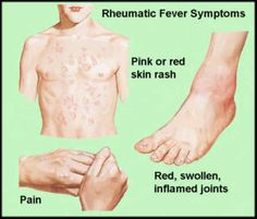 Rheumatic fever treatment guide, erythema marginatum and use of penicillin Disease Symptoms, Autoimmune Disease, Red Skin Rash, Rheumatic Fever, Nursing Pins, Ob Nursing, Thyroid Issues, Pediatric Nursing, Medical Information