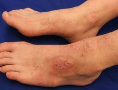 Atopic dermatitis causing a rash on ankles and feet. Find out about the causes, symptoms and best treatment options for an ankle rash Itchy Rash, Skin Rash, What Causes Heat Rash, Types Of Rashes, Eczema Symptoms, Foot Pain, The Cure, Health Infographics