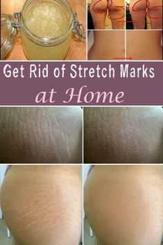 Follow Goodnight Stretch Marks to learn more