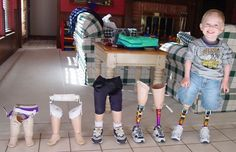 This 7 year old boy was born without any tibia or knee bones and had a rare condition know as Sacral Agenesis, so the bottom half of his legs had to be amputated when he was a toddler,..2 months later he got his first pair of prosthetic legs,..