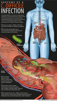 What you Should Know About Clostridium Difficile Infection : Clostridium Difficile Infection: Causes, Symptoms, Treatment, and Nursing Information, Nursing School Notes, Nursing Schools, Nursing Tips, Nursing Programs, Study Nursing, Rn Programs, Lpn Nursing, Medical Assistant