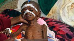 criança severamente desnutrida na Somália - foto da Euronews