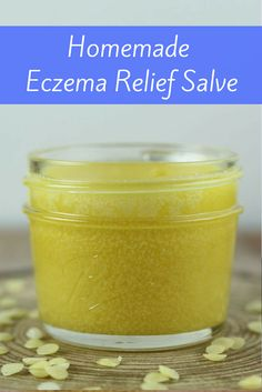 Homemade Eczema Relief Salve If you are looking for eczema treatments, try this homemade remedy for eczema. This salve was my cure for eczema. I used this to help my skin heal and finally got rid of it for good. Your results may vary, but this helped me! Homemade Moisturizer, Face Scrub Homemade, Homemade Skin Care, Homemade Beauty, Homemade Gifts, Face Eczema, Salve Recipes, Eczema Relief, Eczema Remedies