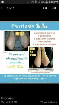Natural Remedies for Psoriasis.What is Psoriasis? Causes and Some Natural Remedies For Psoriasis.Natural Remedies for Psoriasis - All You Need to Know Psoriasis Cream, Psoriasis Diet, Psoriasis Remedies, Psoriasis Arthritis, Essential Oils For Psoriasis, Patchouli Essential Oil, Essential Oil Uses, Young Living Oils, Young Living Essential Oils