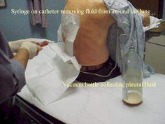 1000 Images About Medicine Procedures On Pinterest