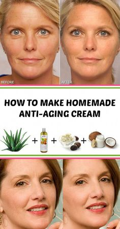 ★★★★★ 22 reviews: How to Make Homemade Anti-aging Cream #beauty #antiaging #homemade #beautyhacks #beautytips | bokinghotel.club #WartsOnFace Homemade Skin Care, How To Make Homemade, Diy Skin Care, Skin Care Tips, Homemade Beauty, Best Anti Aging, Anti Aging Cream, Anti Aging Skin Care, Pole Dancing