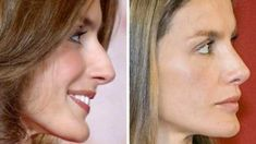 Letizia Ortiz - plastic surgery - Another! Botox Results, Plastic Surgery Pictures, Botox Lips, Plastic Surgery Gone Wrong, Celebrity Plastic Surgery, Nose Surgery, Cosmetic Procedures, Queen Letizia, Queen Rania