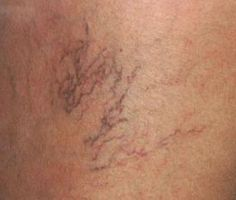 Learn how to stop spider veins before they start