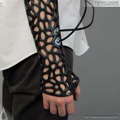 Osteoid, o gesso do futuro