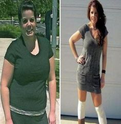 Before After Weight Loss