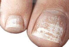 White Toenail Fungus – Symptoms, Causes & Treatment!  http://www.yellowtoenailscured.com/white-toenail-fungus/