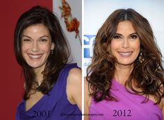 Teri Hatcher Plastic Surgery Before & After - Celebrity Plastic Surgery Teri Hatcher, Celebrity Plastic Surgery, Ugly To Pretty, Desperate Housewives, Being Ugly, That's Entertainment, Celebrities, Artists, Celebs