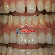 MS Dental Implant Dentistry, Cosmetic Dentistry, Teeth Implants, Dental Implants, Oral Maxillofacial, Dental Hospital, Root Canal Treatment, Smile Design, Best Dentist