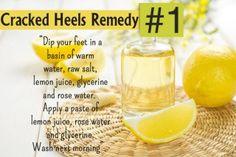 Home Remedies For Cracked Heels - Lemon Mak