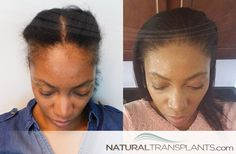 Traction Alopecia Tuesday - Female hair transplant before and after images weekly. Contact us today at or 1 to learn more. Hair Transplant Women, Hair Doctor, Female Hair, Hair Restoration, Hair Transformation, Hair Loss, Hair Growth, Eyebrows, Natural Hair Styles