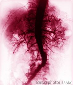 Normal abdominal angiogram showing the many branches of the aorta supplying the organs of the abdomen.