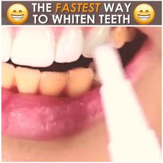 ✨Save Time & Money With This Teeth Whitening Pen! Removes of Coffee, Wine, & Other Stains 😁 Teeth Whitening Bleach, Natural Teeth Whitening, Whitening Kit, Teeth Care, Skin Care, White Teeth, Health And Beauty Tips, Beauty Skin, Coffee Wine