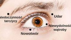 8 Things Your Eyes Are Trying to Tell You About Your Health Dieta Dash, Corneal Ulcer, Drinking Alkaline Water, Yoga Position, Liver Failure, Krill Oil, Self Treatment, Yoga, Eyes